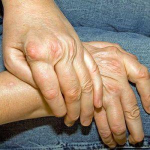 Rheumaarzt Wien Rheumatoide Athritis Behandlung-prof.-Fritsch-Stork-Wien-Rheumatologin